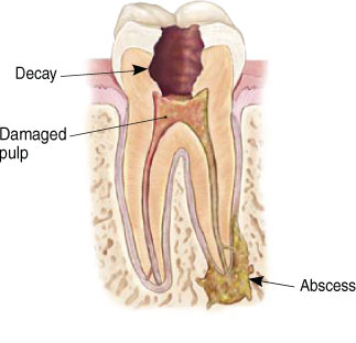 Endodontist Root Canal Seattle WA patientendo3