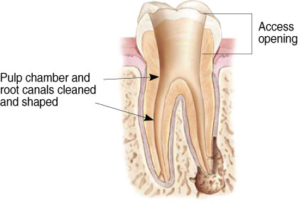 Endodontist Root Canal Seattle WA patientendo4