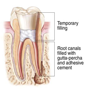 Endodontist Root Canal Seattle WA patientendo5