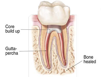 Endodontist Root Canal Seattle WA patientendo6