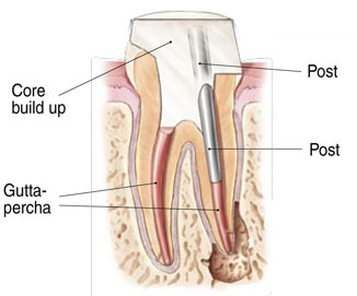 Endodontist Root Canal Seattle WA patientendo7